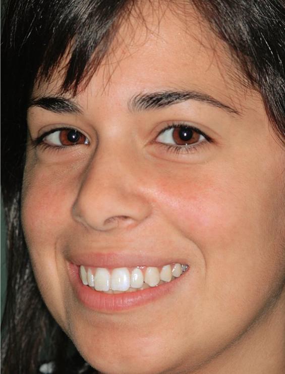 Dental crown on implant