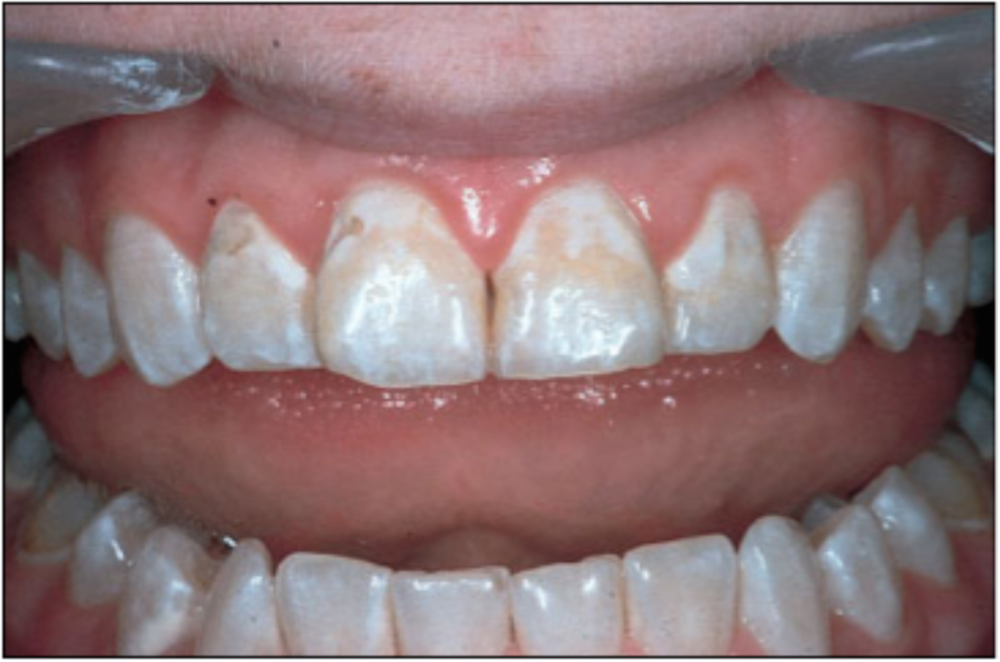 discolored teeth from antibiotics