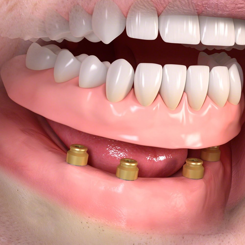 Removable_denture_with_Lxxx_attachement_03.jpg