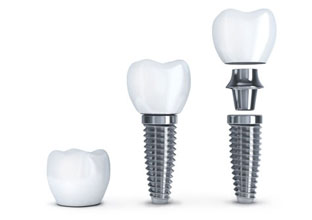 dental-implant-pricing.jpg