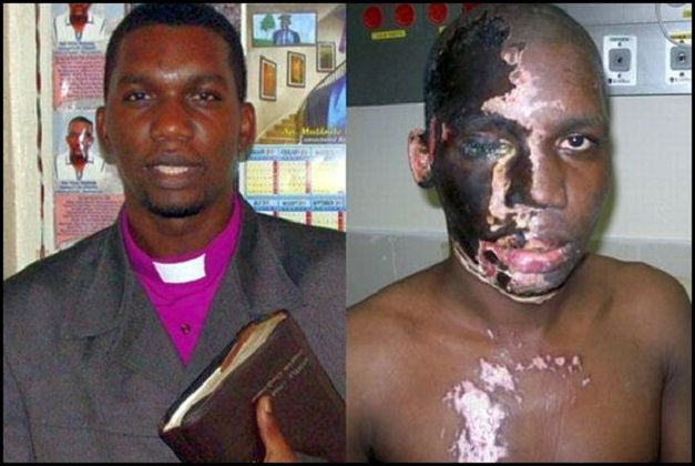Christian Pastor Umar Mulinde, before and after being acid attacked by Muslims. Pastor Mulinde is also an apostate of Islam.