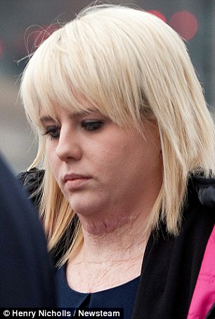 Vikki is pictured arriving at court, where the scars on her neck could be seen.