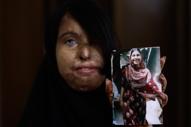 Pakistani acid attack survivor Naila Farhat, 22, holds a picture of herself before the attack.