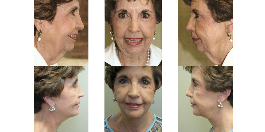 Face & Neck Lift Patient 1