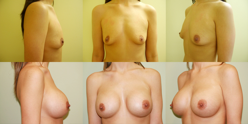 Breast Augmentation Patient 1