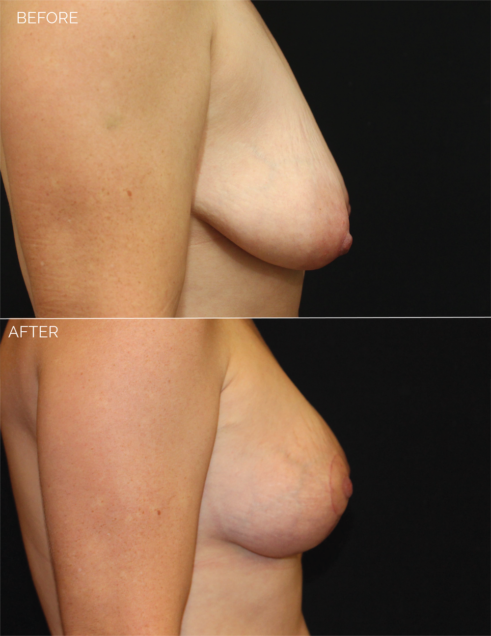 BREAST AUGMENTATION  + VERTICAL MASTOPEXY - CHART #5037-10.png