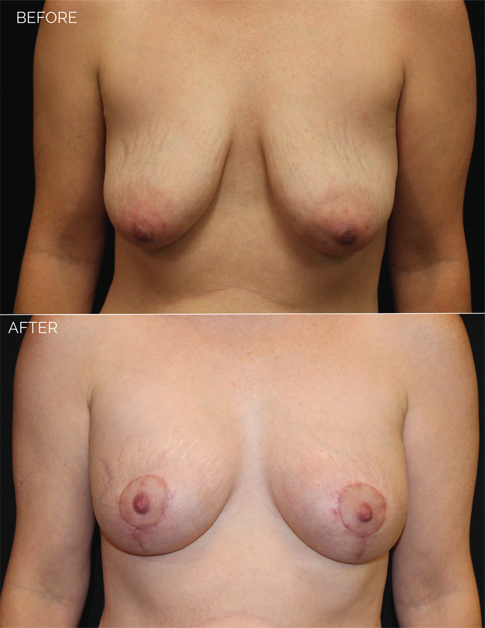 BREAST AUGMENTATION  + VERTICAL MASTOPEXY - CHART #5037-06.png