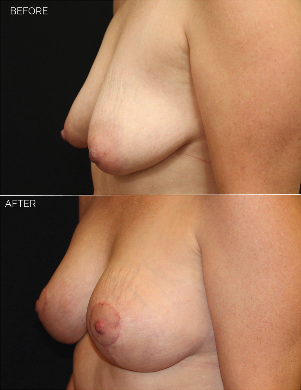 BREAST AUGMENTATION  + VERTICAL MASTOPEXY - CHART #5037-07.png