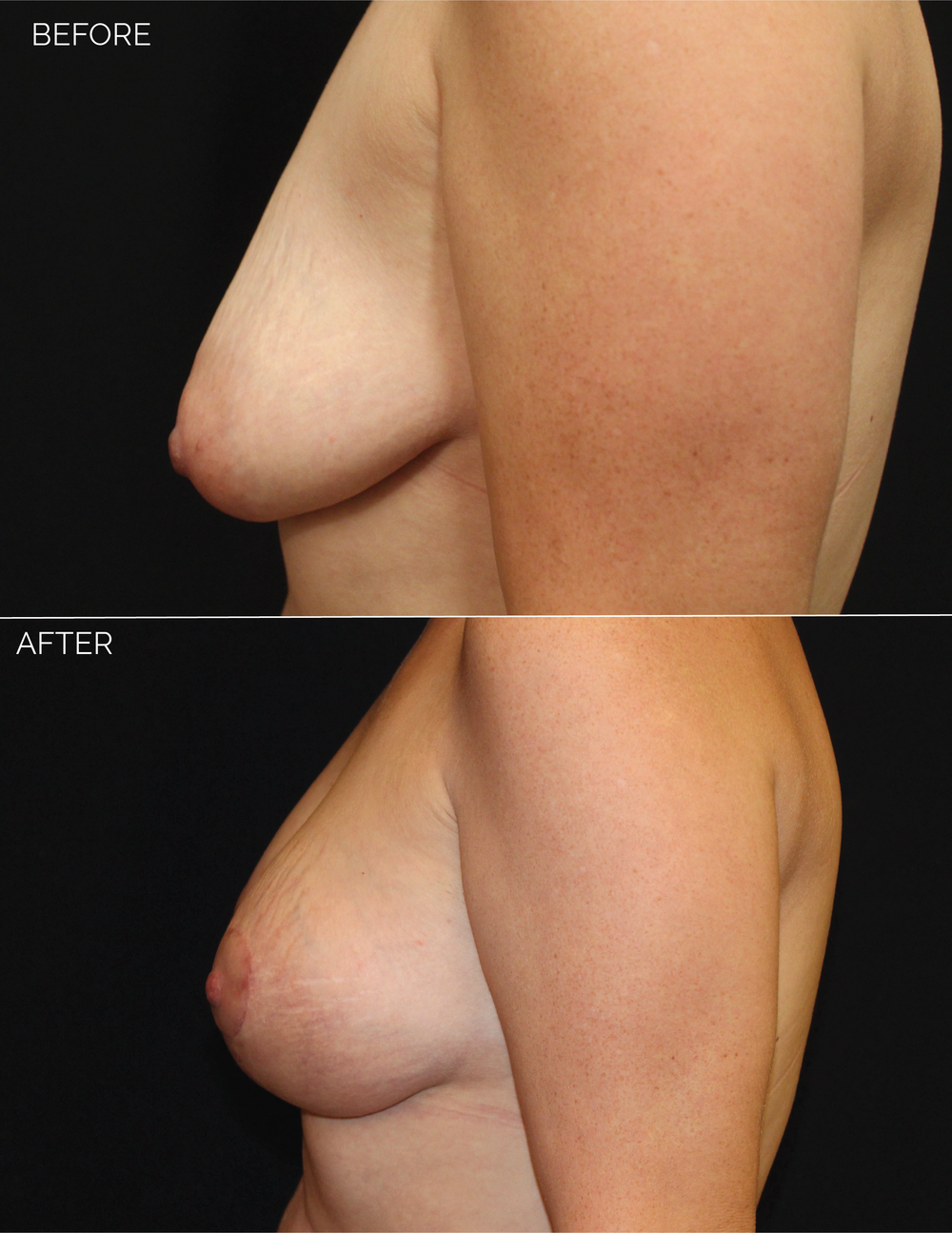 BREAST AUGMENTATION  + VERTICAL MASTOPEXY - CHART #5037-08.png