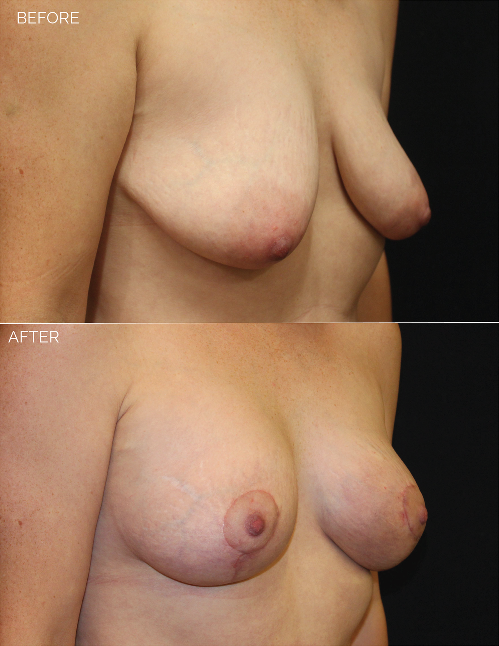 BREAST AUGMENTATION  + VERTICAL MASTOPEXY - CHART #5037-09.png