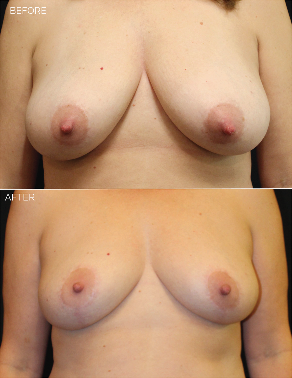 BREAST LIFT - CHART #4685 - 10 MONTHS POST OP-06.png