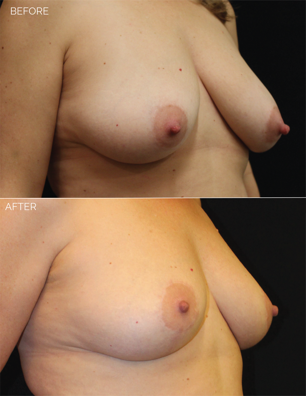 BREAST LIFT - CHART #4685 - 10 MONTHS POST OP-09.png