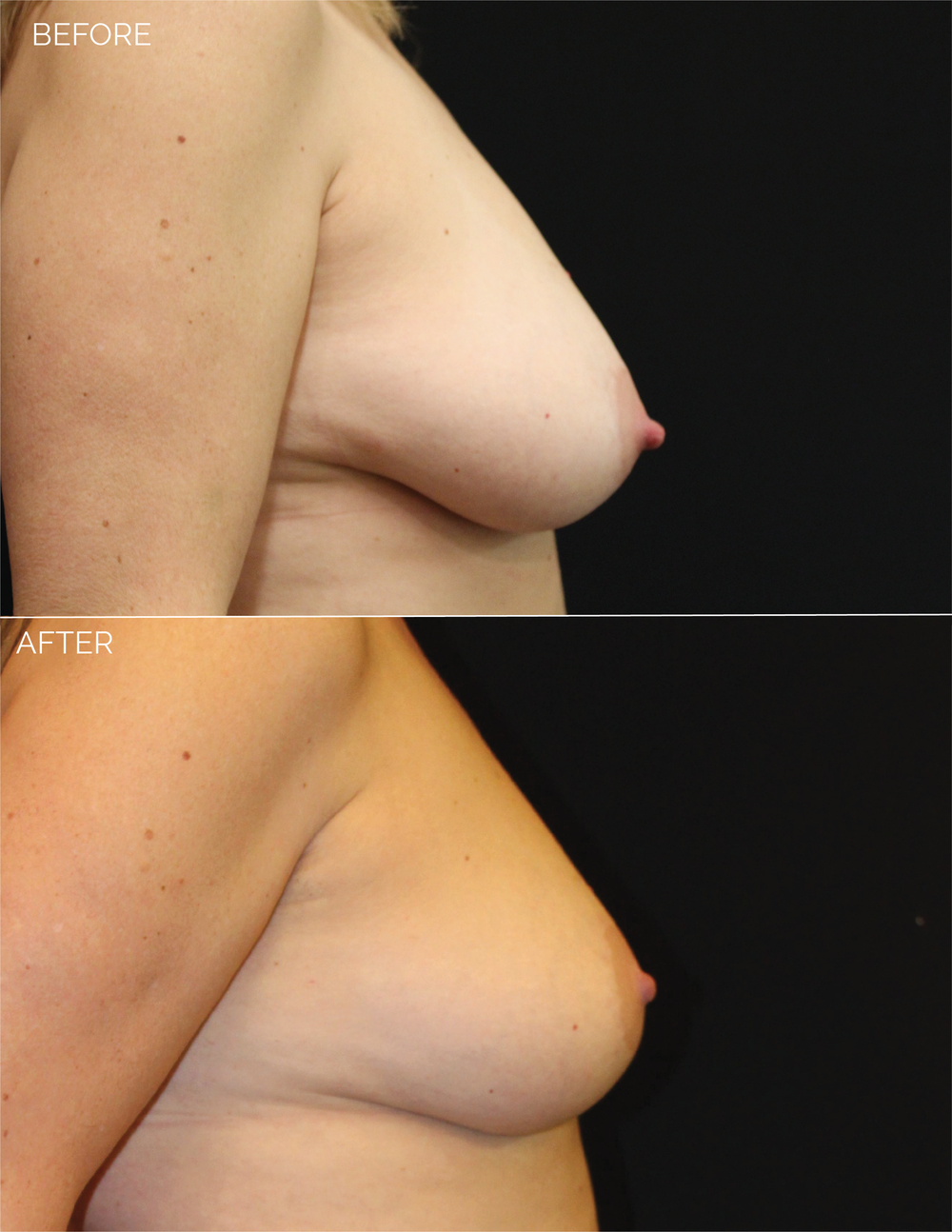 BREAST LIFT - CHART #4685 - 10 MONTHS POST OP-10.png