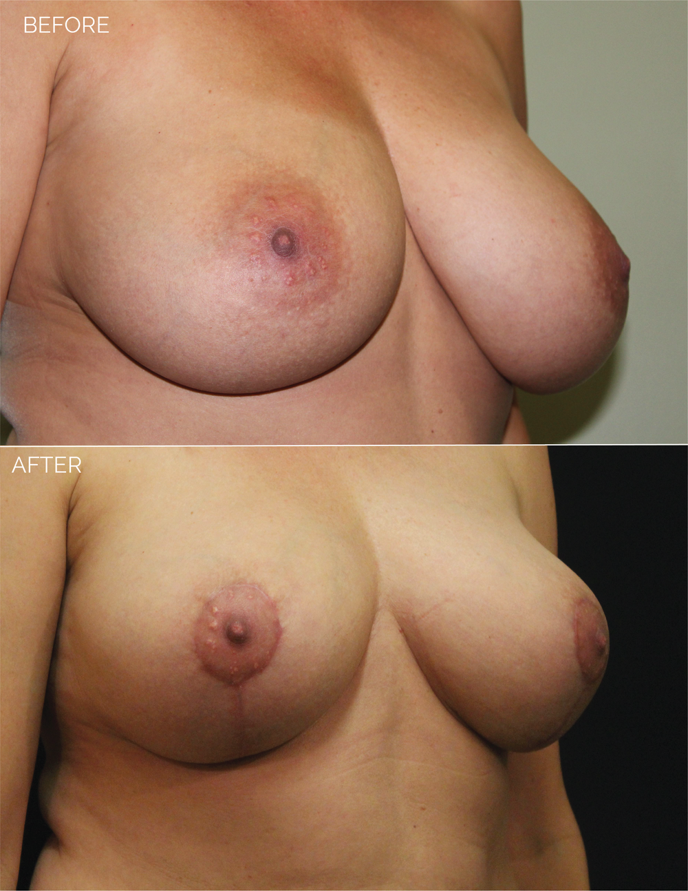 BREAST LIFT - CHART #4400 - 1 MONTH POST OP-09.png