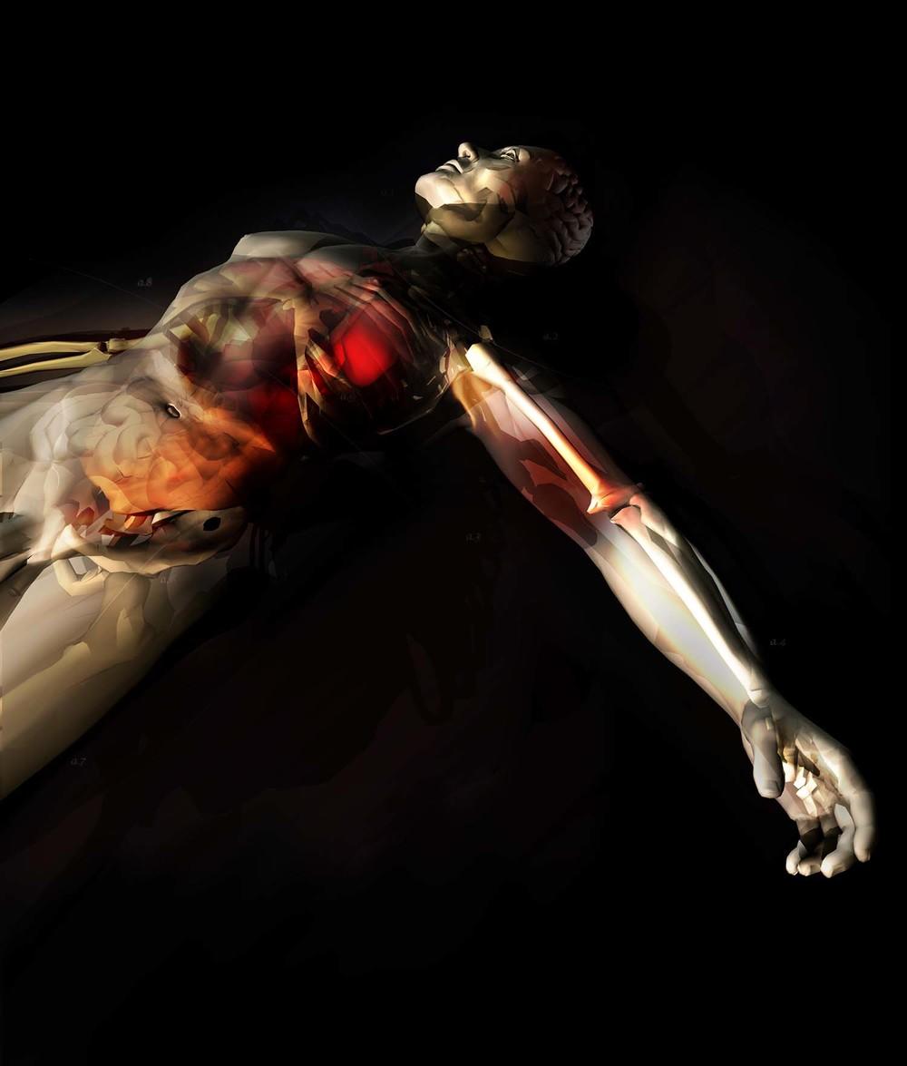 wired-cadaver-crop02 (2001).jpg