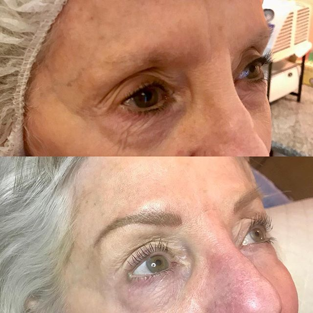 Huge difference with microblading #microblading