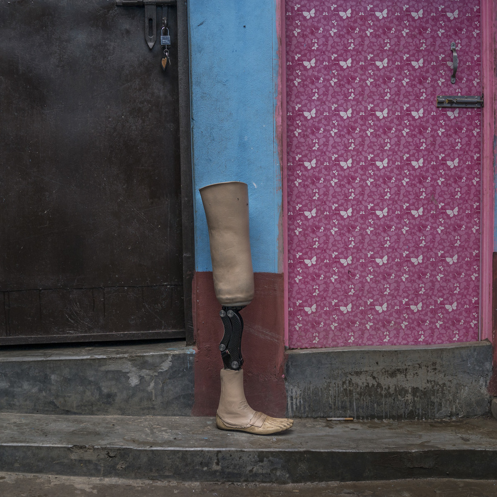 On the day of the Rana Plaza collapse, Raihan Kabir, 24, was stuck under a heavy machine that is used to sew jeans and pants. It fell down on his legs, and he was entrapped for 14.5 hours until he was finally rescued. She shared, after taking me to the hospital, leg was aching so much that I could not tolerate it. I told them to amputate my right leg.  After another operation the doctors amputated my leg.