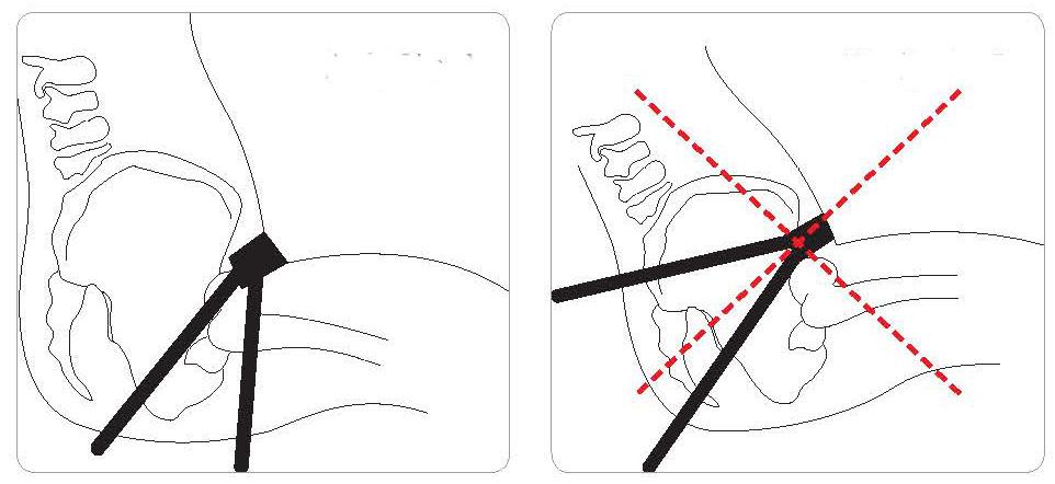 Fitting Antirotational Belt.jpg