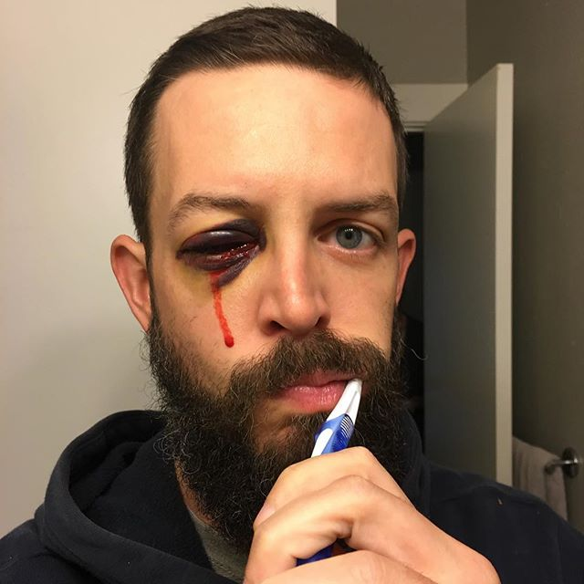 One year ago, the start of a 3month long battle to retain an eye, followed by a 6month long battle to regain any semblance of working vision. It's not what it used to be, but its as good as it'll ever be. I've worked hard to repurpose the recurring horrors of future blindness as motivation to make the most of what I have left, though there are also new restrictions on what can be considered a reasonable risk. One good head smack could end in blindness. Its not a happy ending, or a promising future, but it never was. Comforts only cater to the ego, nothing is deserved or promised. Embrace chaos and get on with it.