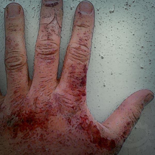 Hot Hand Defines Skin Burns - Display new skin burn classifications.