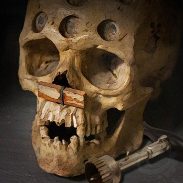 Trepanning is ancient migraine treatment