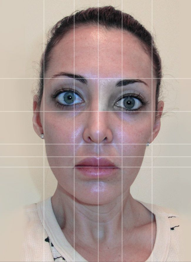 Demonstrative facial asymmetry