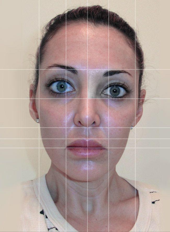 Asymmetry Facial 5