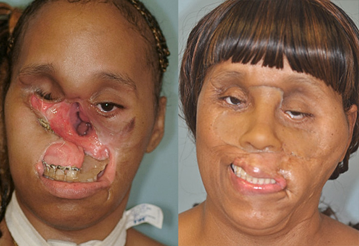 Before and after reconstructive surgery for Carolyn Thomas