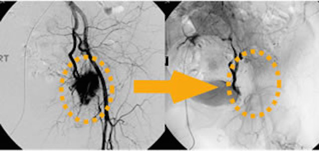 Embolization of tumor sharply reduces blood flow as seen in these angiograms before (left) & after (right)