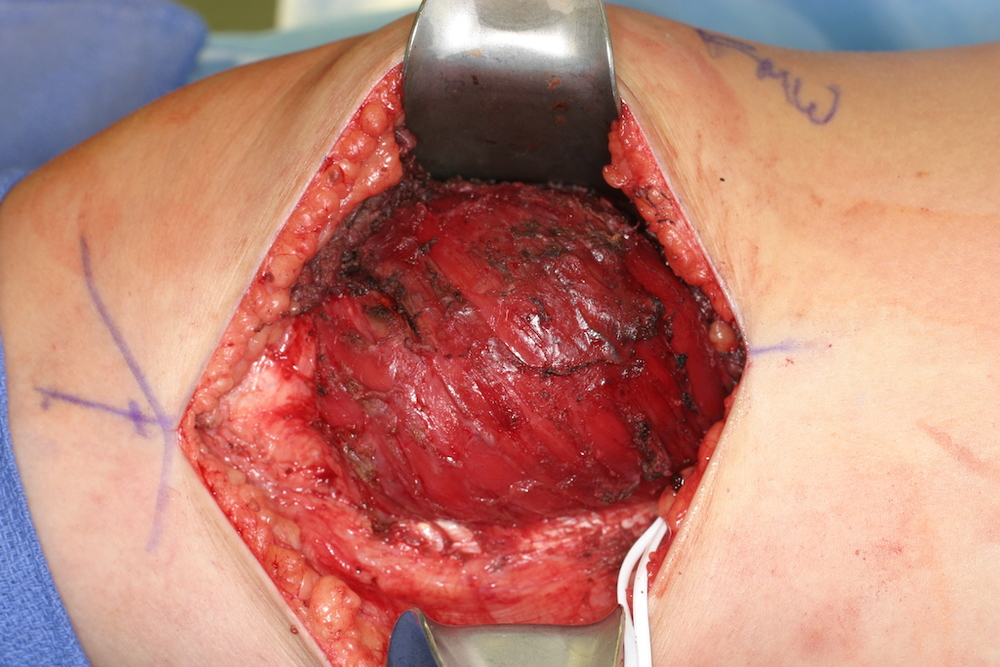 The knee region is opened and the tumor exposed