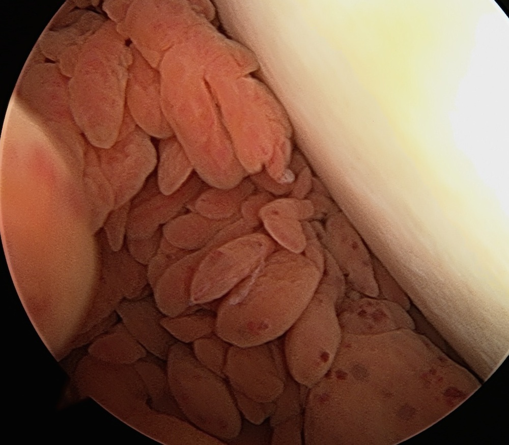 Pigmented Villonodular Synovitis (PVNS) seen inside knee via arthroscopy