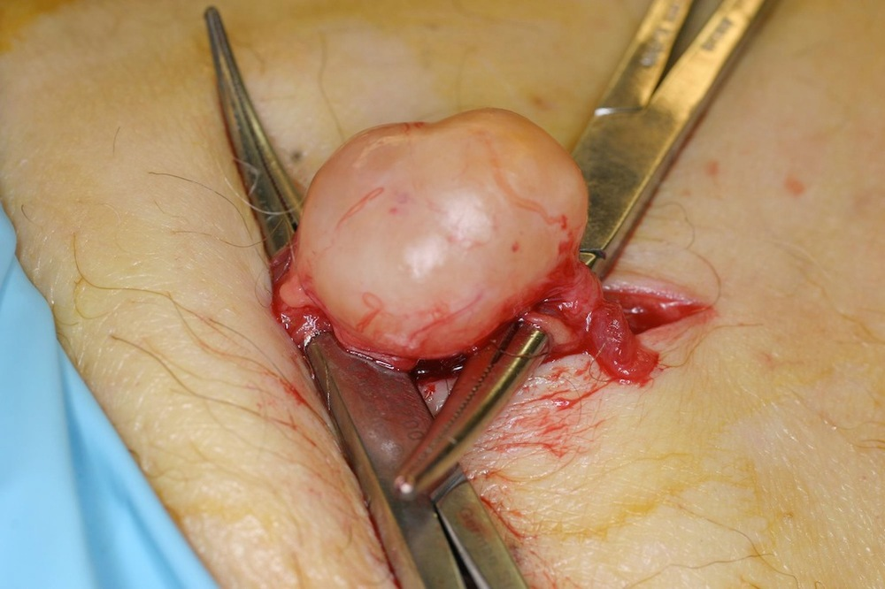 Small painful schwanomma (nerve sheath tumor) being excised