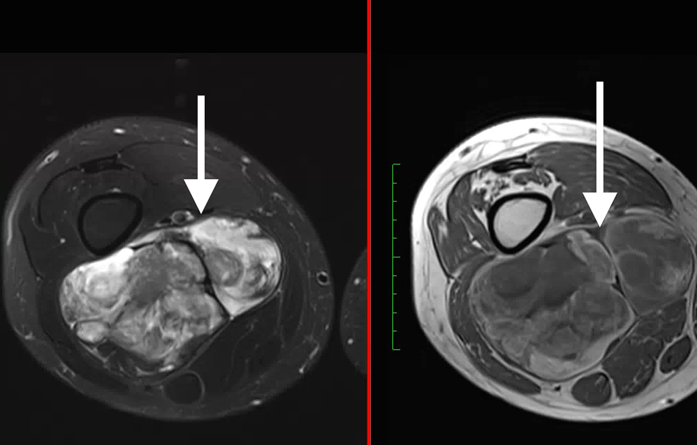 Myxoid liposarcoma, two different MRI modalities showing combination of fluid & fat signals