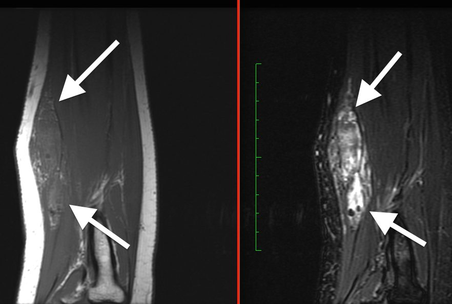 Venous malformation in forearm, two different MRI sequences showing fat & fluid content