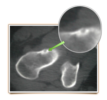 Osteoid osteoma in proximal femur