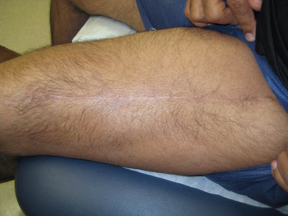 Healed thigh incision nine months later