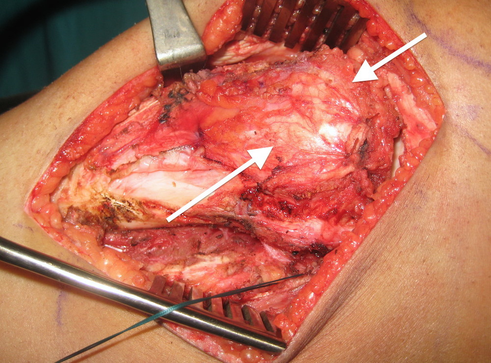 Tibia is exposed with layer of muscle and tissue covering the tumor (two arrows)