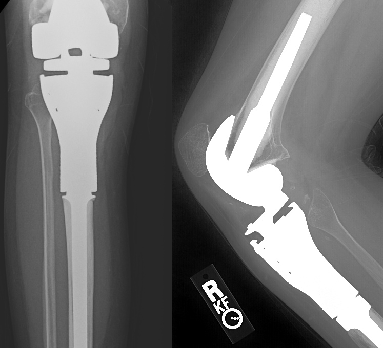 Final X-ray of proximal tibia reconstruction