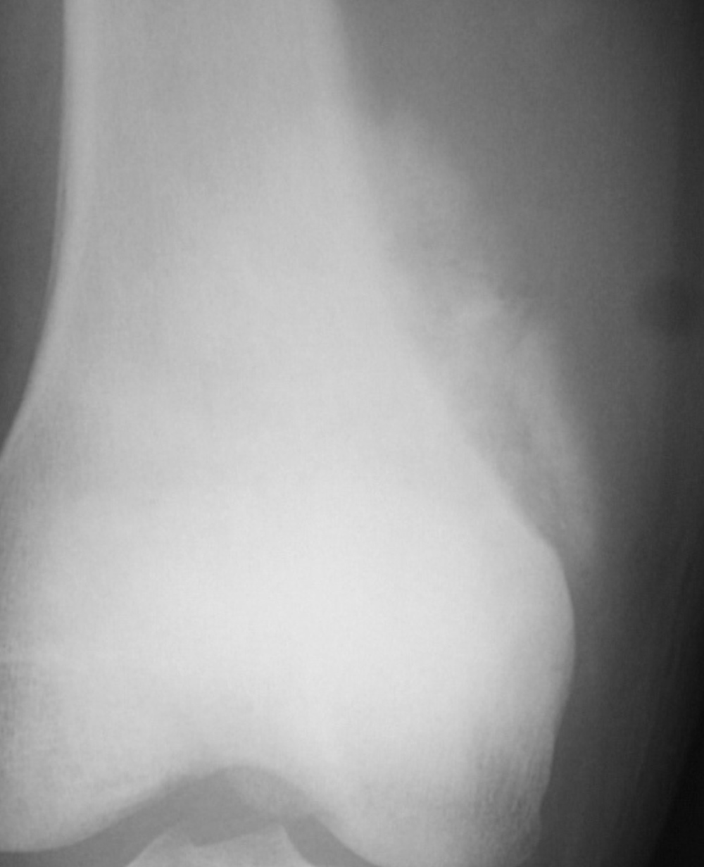 Close up showing calcified soft tissue mass adjacent to femur, highly suspicious for osteosarcoma.