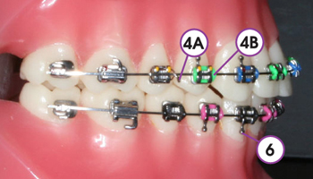 2_TraditionalBraces_Color_Cropped.jpg
