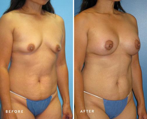 Lani-Faulkner-(circ-breastlift-+-breast-aug)--3.jpg