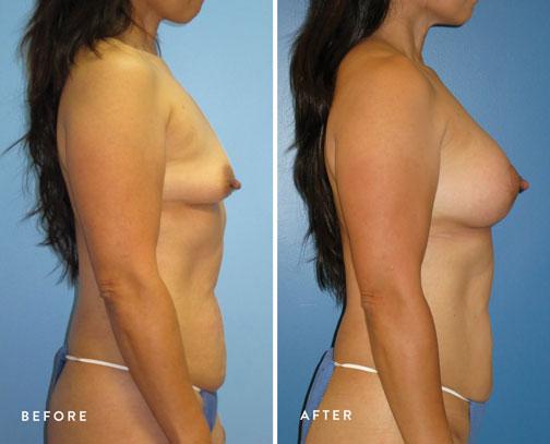 Lani-Faulkner-(circ-breastlift-+-breast-aug)--2.jpg