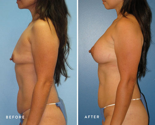 Lani-Faulkner-(circ-breastlift-+-breast-aug)--4.jpg