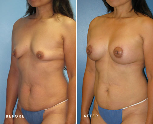 Lani-Faulkner-(circ-breastlift-+-breast-aug)--5.jpg