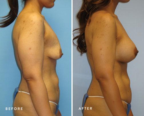 Lizette-Escobedo-(circ-breast-lift-+-breast-aug)-2.jpg