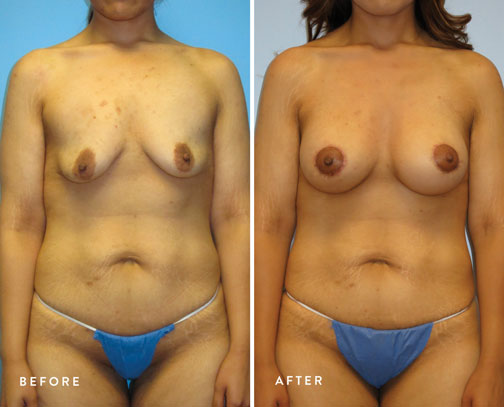 Lizette-Escobedo-(circ-breast-lift-+-breast-aug)-1.jpg