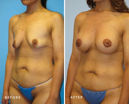 Lizette-Escobedo-(circ-breast-lift-+-breast-aug)-3.jpg