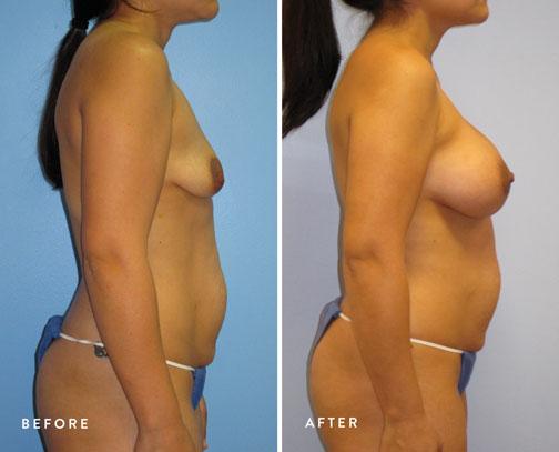Veronica-Paiz-(breast-lift-+-breast-aug)-2.jpg