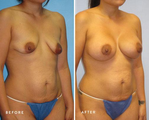 Veronica-Paiz-(breast-lift-+-breast-aug)-3.jpg