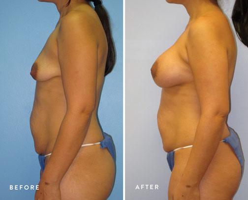 Veronica-Paiz-(breast-lift-+-breast-aug)-4.jpg